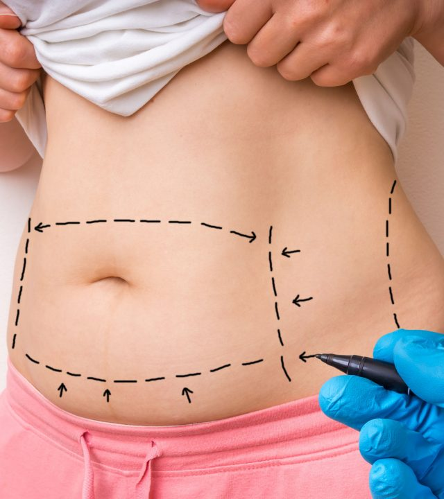 74104446 – plastic surgery doctor draw lines with black marker on patient belly