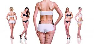 42597749 - woman's buttocks prepared to plastic surgery isolated