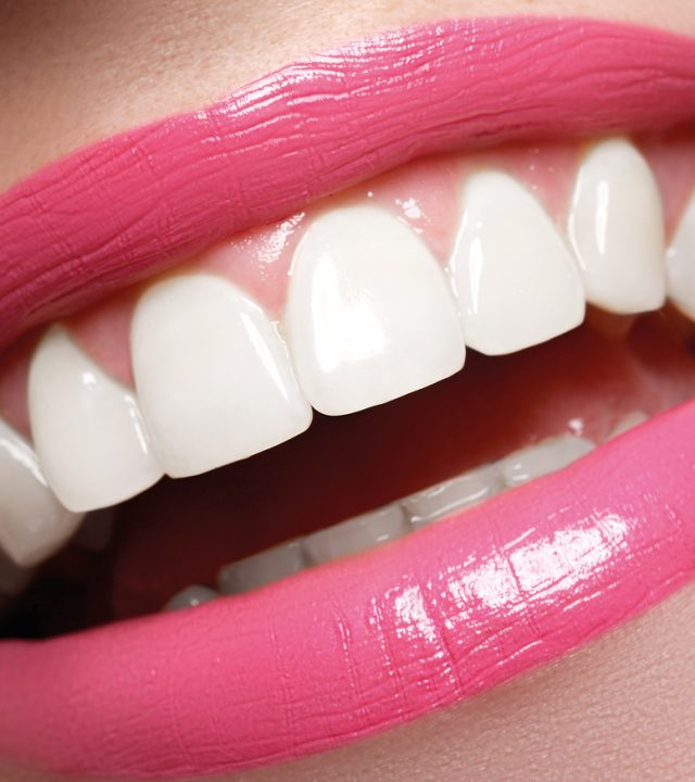 Perfect smile before and after bleaching. Dental care