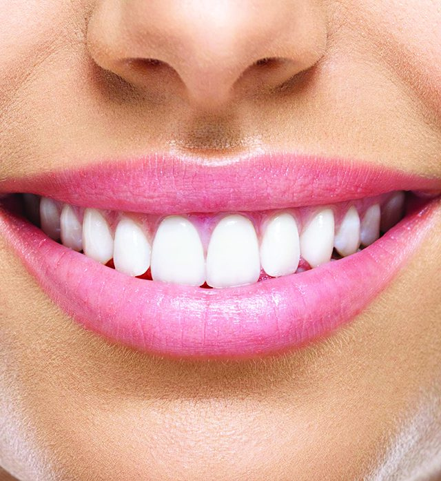 21790157 – closeup of smile with white heatlhy teeth